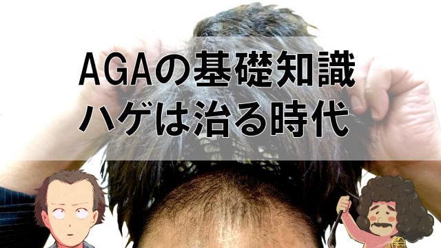 AGAの基礎知識
