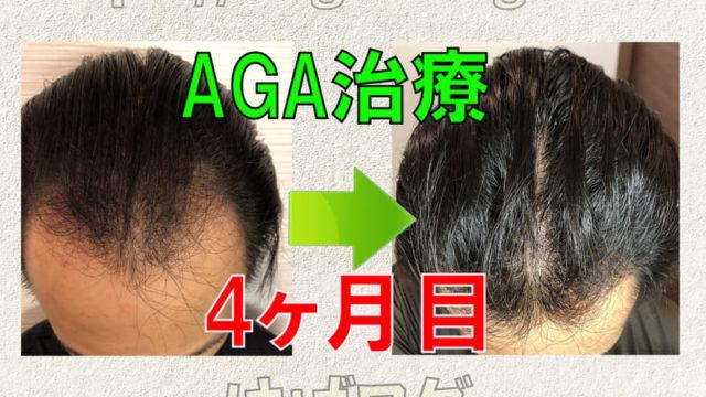 AGA治療4ヶ月目経過報告