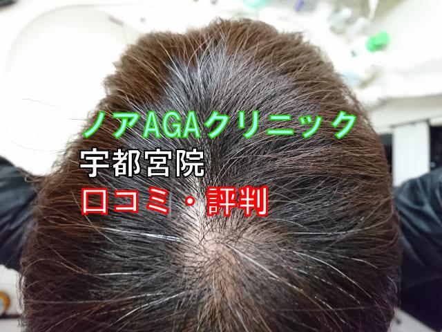 ノアAGAクリニックの口コミ・評判