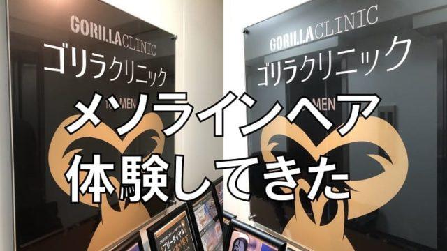 ゴリラクリニック新宿店でAGA治療体験(メソラインヘア)