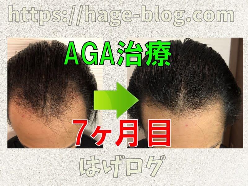 AGA治療7ヶ月目