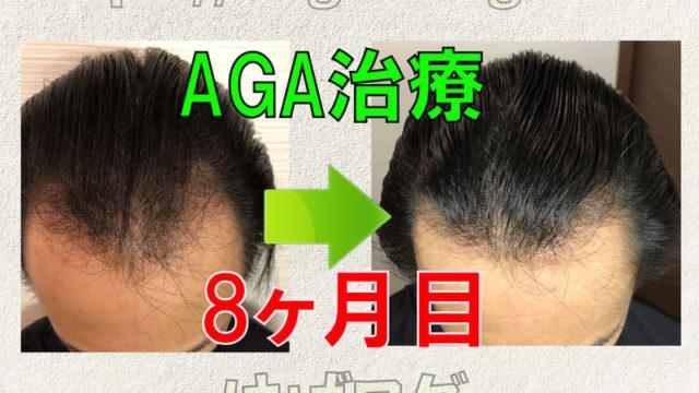 AGA治療8ヶ月目